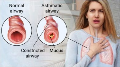 Photo of Asthma – Causes, Symptoms and Treatment
