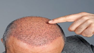 Photo of How To Choose Best Hair Transplant Clinic & Surgeon In Kerala?