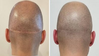 Photo of FUE vs. FUT Hair Transplant: Everything You Need To Know
