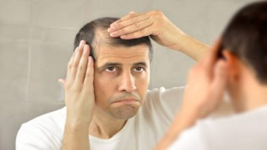 Photo of How Does Minoxidil Help With Early Baldness: Top Things To Know