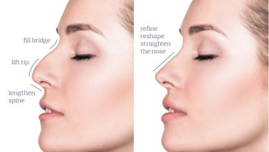 Photo of Non-Invasive Beauty Treatments: The Difference Between Thread Lifts and Dermal Fillers